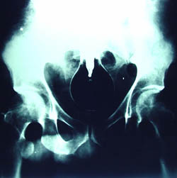 x ray archive of april winchell